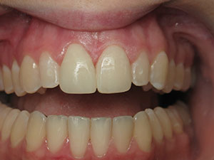After Direct Resin Veneers in provided by North Dallas Dentist
