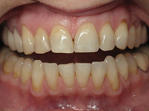 Before Esthetic Crowns Treatment