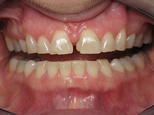 Before full mouth esthetic crowns treatment