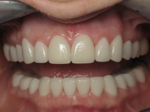 After Full Mouth Esthetic crowns treatment at Dale Greer DDS, Inc.