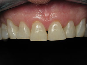 Before Natural Veneers Treatment.
