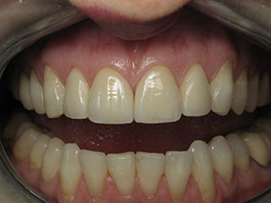 After Natural Esthetic Dental Crowns Treatment in North Dallas