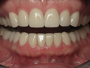North Dallas Natural Esthetic Crowns
