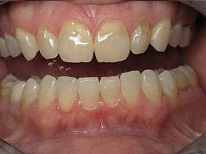 Before receiving porcelain veneers