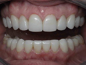 After receiving porcelain veneers in North dallas