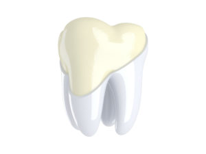 Model of a tooth missing enamel