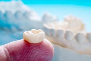 Dental crown in North Dallas